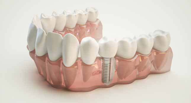 In Dothan, AL, Dr. Nathan Pfister and Dr. Brian Pfister of Biodentist Alabama offer ceramic implants to replace missing teeth.