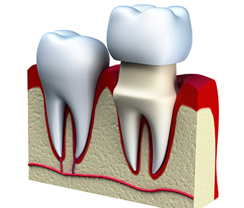 Affordable crowns for teeth from dentist in Dothan, AL