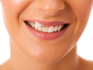 Ozone Teeth Whitening Dothan Ozone Therapy For Discolored Teeth