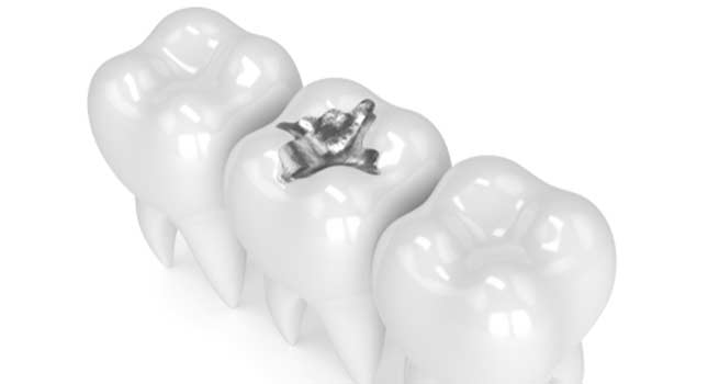 3d render of teeth with dental amalgam filling over white background