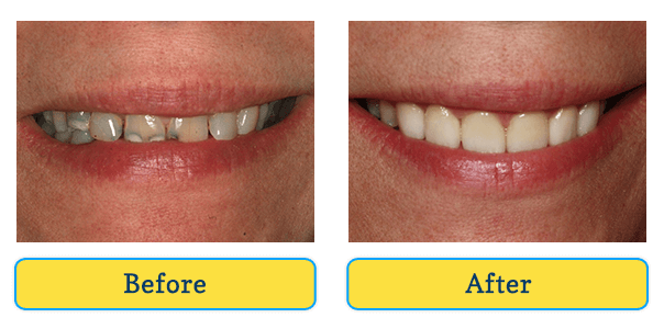Before and After teeth 1