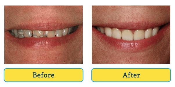 Ozone Dental Therapy Dothan