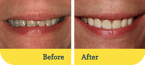 Dentist Dothan - Biodentist Alabama - Before and After 1