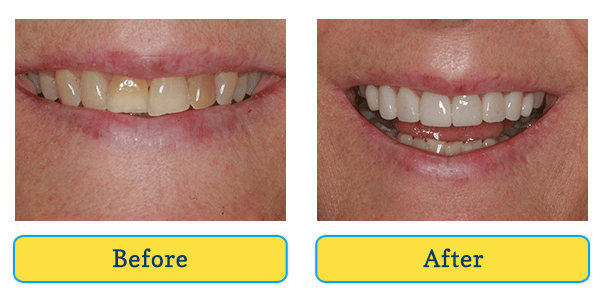 Before and After teeth 2