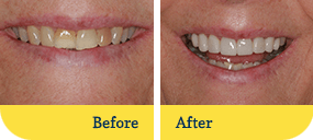 Smile Makeover Dothan Before After Teeth