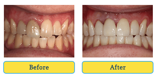 Before and After teeth 3
