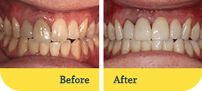 Dentist Dothan - Biodentist Alabama - Before and After 3