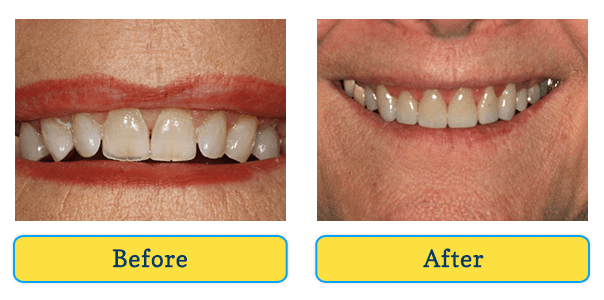 Before and After teeth 4