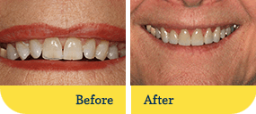 Dentist Dothan - Biodentist Alabama - Before and After 4